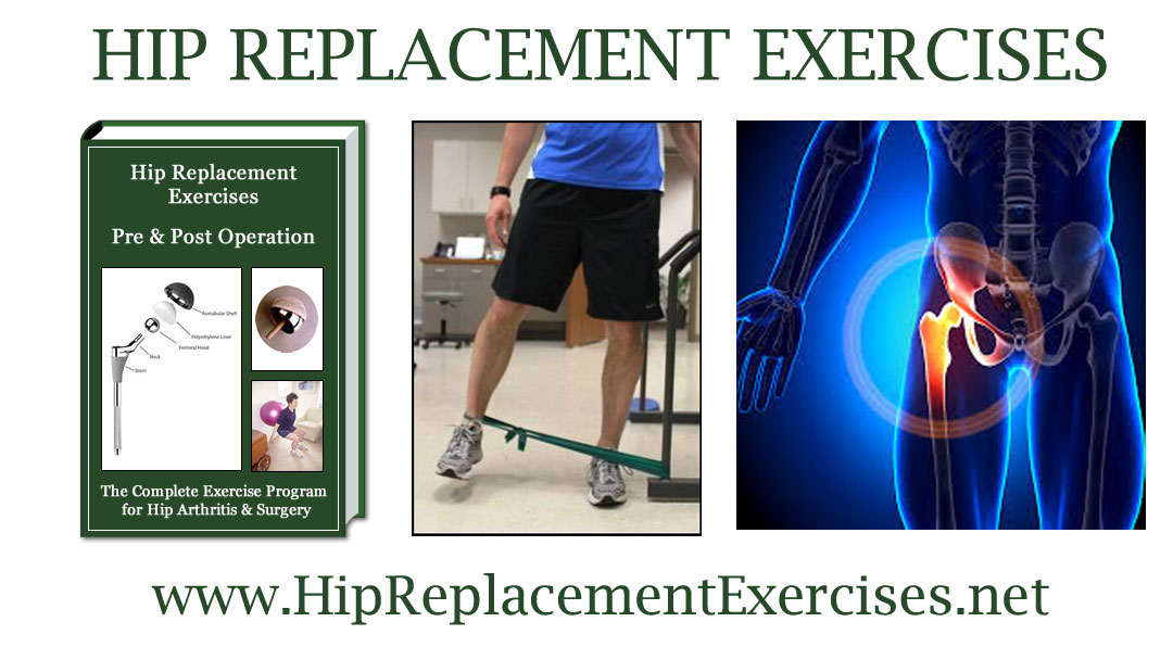 Hip Replacement Exercises — Hip Replacement Exercises